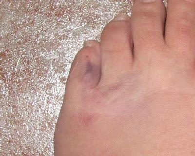 Causas emocionales que afectan al dedo MEÑIQUE DEL PIE